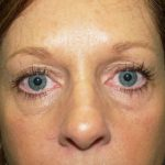 Eye Surgery Before & After Patient #682