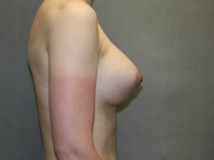 Breast Lift Before & After Patient #1509
