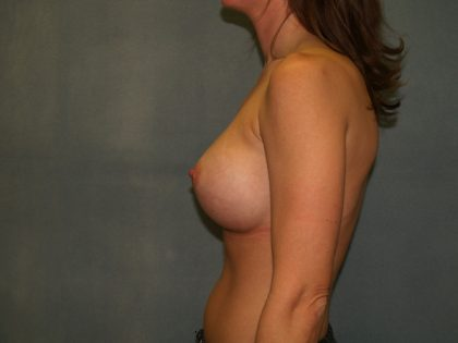 Breast Augmentation Before & After Patient #2591