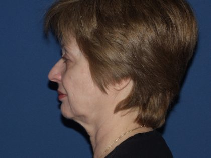 Facelift Before & After Patient #564