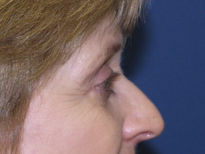 Eye Surgery Before & After Patient #695
