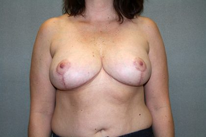 Breast Reduction Before & After Patient #3337