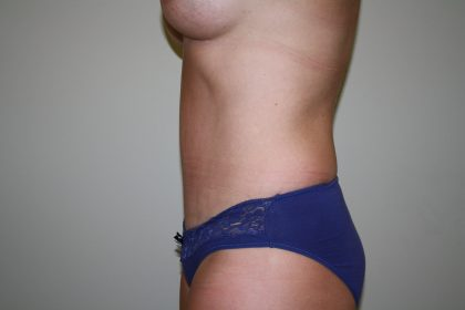 Tummy Tuck Before & After Patient #2309