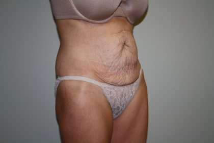 Tummy Tuck Before & After Patient #1934
