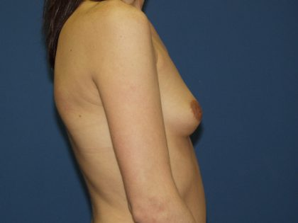 Breast Augmentation Before & After Patient #2510