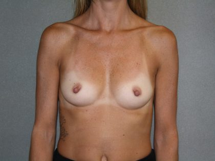 Breast Augmentation Before & After Patient #2517