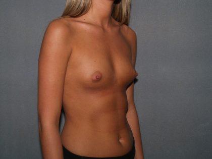 Breast Augmentation Before & After Patient #2969