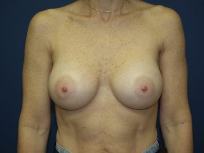 Breast Augmentation Before & After Patient #2545