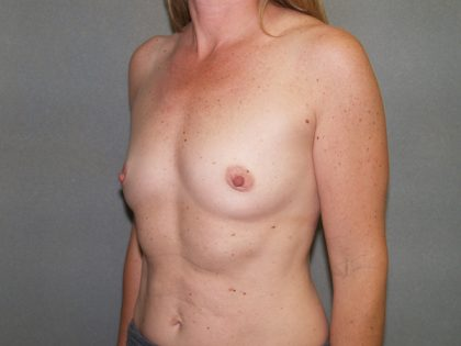 Breast Augmentation Before & After Patient #2559