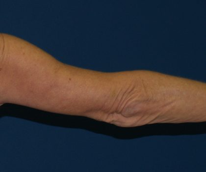 Arm Lift Before & After Patient #846
