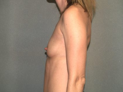 Breast Augmentation Before & After Patient #2640