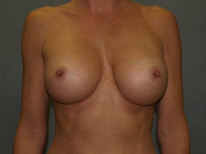 Breast Augmentation Before & After Patient #2661