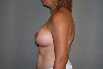 Breast Augmentation Before & After Patient #2682