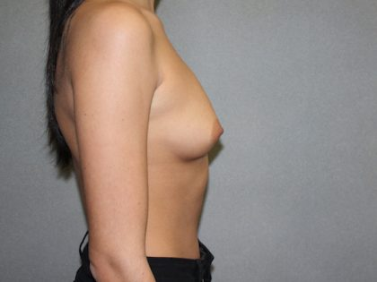 Breast Augmentation Before & After Patient #2689