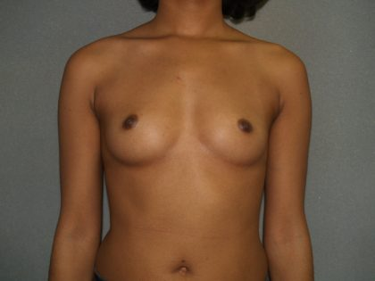 Breast Augmentation Before & After Patient #2668