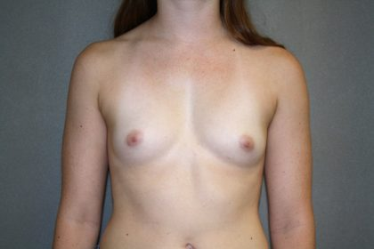 Breast Augmentation Before & After Patient #2717