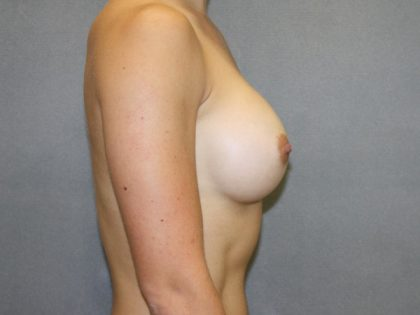 Breast Augmentation Before & After Patient #2745