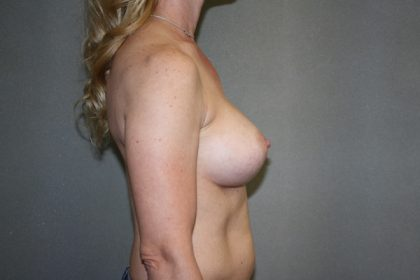 Breast Augmentation Before & After Patient #2752