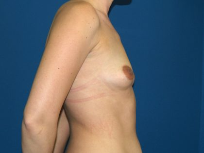 Breast Augmentation Before & After Patient #2759