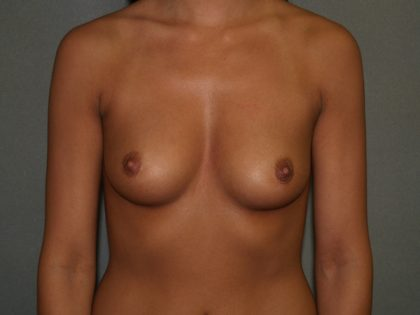 Breast Augmentation Before & After Patient #2787