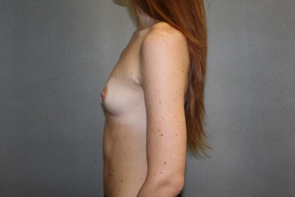 Breast Augmentation Before & After Patient #2808