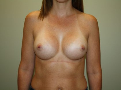 Breast Augmentation Before & After Patient #2850
