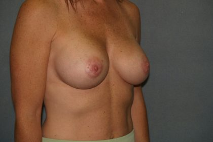 Breast Augmentation Before & After Patient #2829