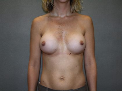 Breast Augmentation Before & After Patient #2878