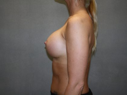 Breast Augmentation Before & After Patient #2899