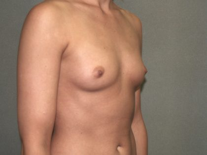 Breast Augmentation Before & After Patient #2906