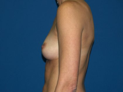 Breast Augmentation Before & After Patient #2927