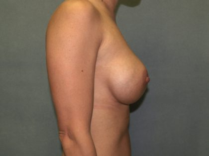 Breast Augmentation Before & After Patient #2955