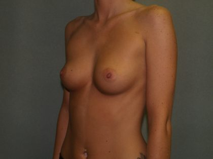 Breast Augmentation Before & After Patient #3018