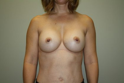 Breast Augmentation Before & After Patient #3004