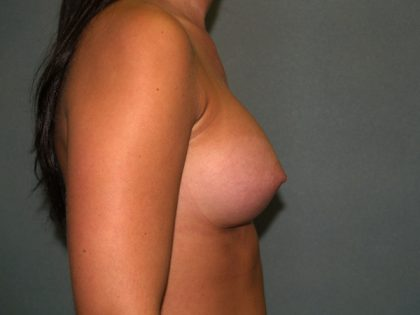 Breast Augmentation Before & After Patient #3039