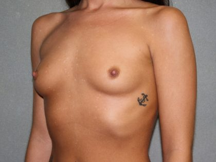 Breast Augmentation Before & After Patient #3067