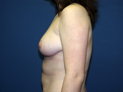 Breast Reduction Before & After Patient #3426