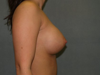 Breast Augmentation Before & After Patient #3095