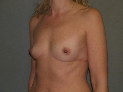 Breast Augmentation Before & After Patient #3109
