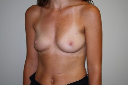 Breast Augmentation Before & After Patient #3116