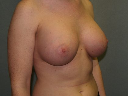 Breast Augmentation Before & After Patient #3139