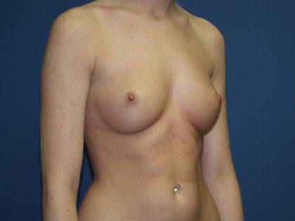 Breast Augmentation Before & After Patient #3132