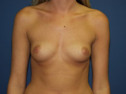 Breast Augmentation Before & After Patient #3153