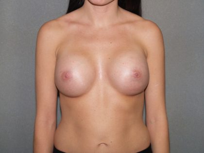Breast Augmentation Before & After Patient #3201