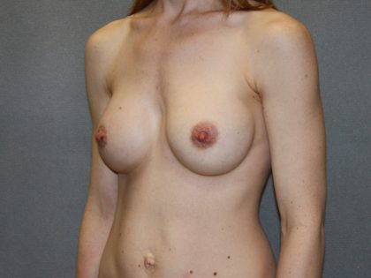 Breast Augmentation Before & After Patient #3229