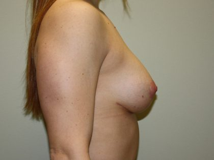Breast Lift Before & After Patient #1446