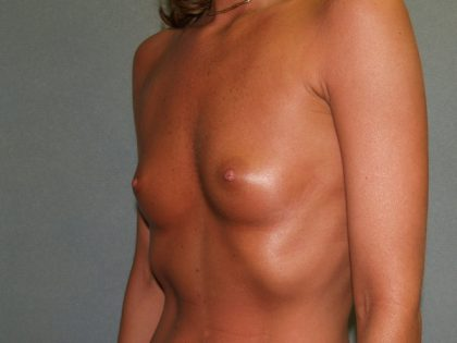 Breast Augmentation Before & After Patient #3236