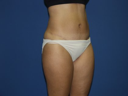 Tummy Tuck Before & After Patient #1848
