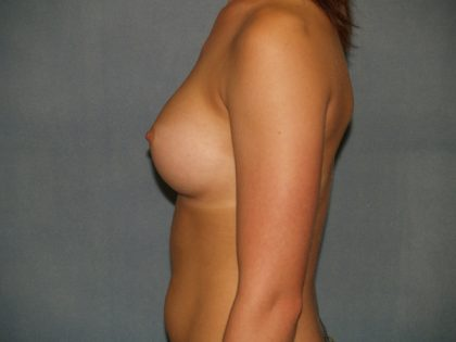 Breast Augmentation Before & After Patient #2794