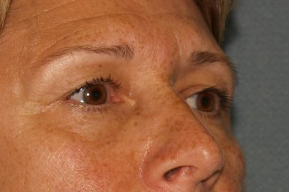 Eye Surgery Before & After Patient #709